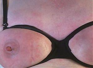 stinging nettle breast--